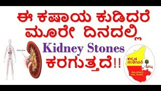 How to remove Kidney Stones Naturally at home  Kannada |  Kannada Sanjeevani