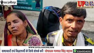 राठ में महिला को ससुरालियों ने जलाया