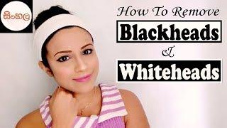 How To Remove Blackheads & Whiteheads SINHALA/SRILANKAN