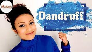 Dandruff හිස්සොරි ගැන හරියටම දැනගෙන ප්රතිකාර කරමු