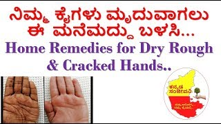 How to get Soft & Smooth Hands Kannada |  Home remedies for Rough dry hands |  Kannada Sanjeevani
