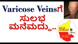 How to Cure Varicose Veins Naturally at home in Kannada | Spider Veins | Kannada Sanjeevani