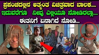 ಪ್ರಪಂಚದಲ್ಲಿನ ಅತ್ಯಂತ ವಿಚಿತ್ರವಾದ ಬಾಲಕ.... | This Boy Slowly Turning Into Stone | Top Kannada Tv