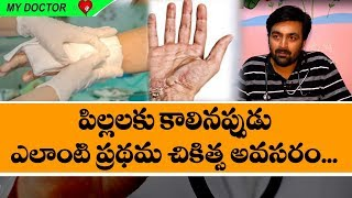 Burns treatment and fire safety for kids in telugu I Kids care doctor I Rectvindia