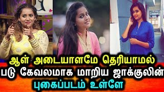 Vijay Tv ஜாகுலினுக்கு  என்ன ஆச்சி எவளோ கேவலமா ஆய்ட்டாங்க புகைப்படம் உள்ளே|Vijay Tv Jacquline Latest