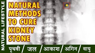 how to stop kidney pain   Natural Methods to cure Kidney Stone
