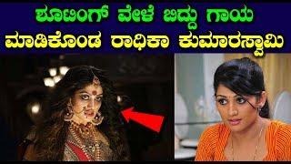 ಶೂಟಿಂಗ್ ವೇಳೆ ಬಿದ್ದು ಗಾಯ ಮಾಡಿಕೊಂಡ ರಾಧಿಕಾ ಕುಮಾರಸ್ವಾಮಿ    Radhika Kumaraswamy Latest News