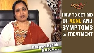 How To Get Rid Of Acne and Symptoms and Treatment | Must Watch