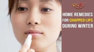 Watch Home Remedies for Dry Lips During Winter