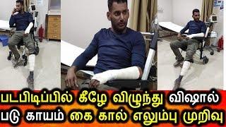 படபிடிப்பில் தவறி விழுந்து விஷால் பலத்த காயம் Vishal Injured In Shooting Spot Vishal In Hospital