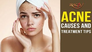 Watch Acne Causes and Treatment Tips | Skin Care