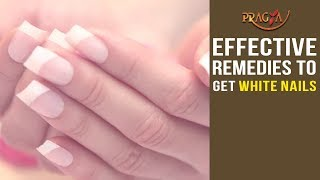 Effective Remedies to Get White Nails | Must Watch