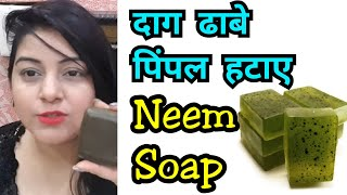 Remove Pimples with Home Made Neem Soap | Acne Treatment | JSuper Kaur