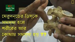 মেরুদন্ডের ডিস্কপ্লপ হলে শরীরের কোথায় কোথায় ব্যাথা হয় || Disorders of the spinal cord
