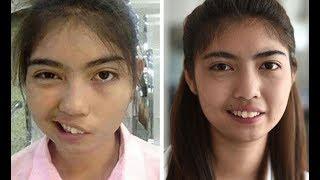 মুখ বাকা কেন হয় | মুখ বাঁকা হলে তার চিকিৎসা | freesial paralysis treatment | Dr. monirujjaman