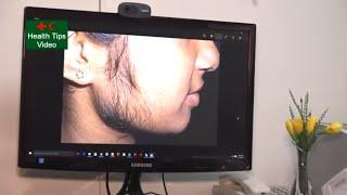 মেয়েদের মুখের অবাঞ্চিত লোম হলে করনীয় | Unwanted hair on the faces of girls | health tips video