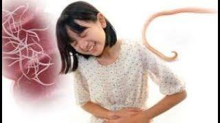 পেটের কৃমি মারাত্নক ক্ষতিকর | Warm and tripped fever | Health tips video