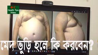 মেদভুড়ি হলে কি করবেন ? মেদ ভুড়ি বিশেষজ্ঞ ডাঃ মাহাবুবের পরামর্শ | Med bhuri | faty stomach