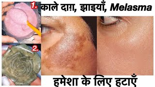 Dark Spots, Pigmentation Treatment at Home | JSuper kaur