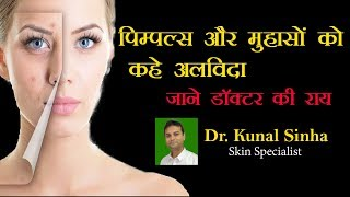 #Acne #Pimples How to cure  Acne and Pimples in Hindi
