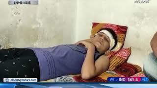 Ahmedabad: સીલીંગ પંખો પડતાં વિદ્યાર્થી ઘાયલ - Mantavya News