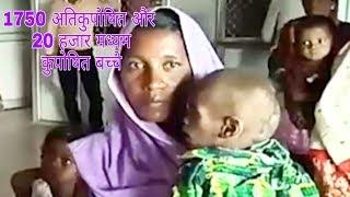 एक ओर अति कुपोषित बच्चे के पाए जाने से पन्ना सहित पूरे मध्यप्रदेश में हड़कंप।#bn #bhartiyanews