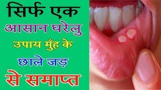 सिर्फ एक आसान घरेलु उपाय मुँह के छाले जड़ से समाप्त | DDEN Tv Ayurveda