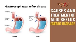 Watch Causes and Treatment of Acid Reflux (GERD) Disease