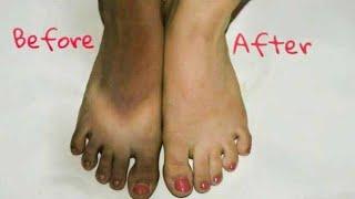 धूप से काली Skin को गोरा कैसे करें | How to remove Sun Tan | JSuper Kaur