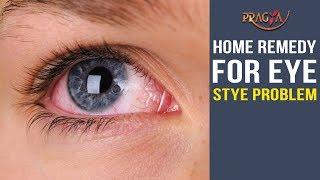 Watch Home Remedy for Eye Stye Problem Cure