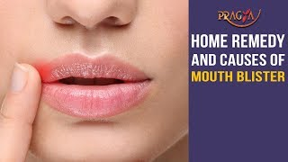 Watch Home Remedy and Causes of Mouth Blister