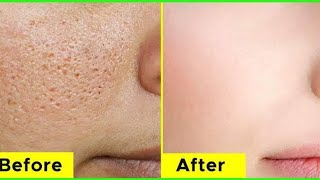 How to get rid of Large Open Pores Permanently | JSuper kaur