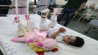 11 महीने की बच्ची के साथ-साथ Doll के पैरों में भी चढ़ाना पड़ा प्लास्टर