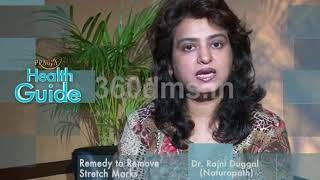 Watch Home Remedy To Get Rid Of Stretch Marks