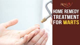 Watch Home Remedy Treatment for Warts