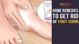 Home Remedies to Get Rid Of Foot Corn | Must Watch