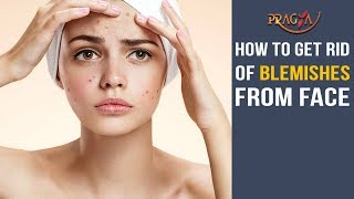 How to Get Rid of Blemishes from face