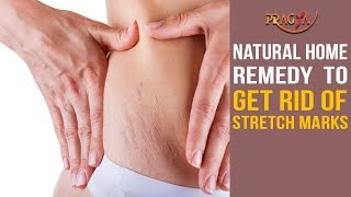 Watch Natural Home Remedy to Get Rid Of Stretch Marks