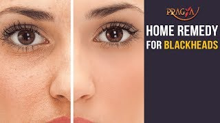 Watch Home Remedy and Natural Treatment for Blackheads
