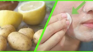 Festival spl - Instant Brightening Potato Facial | Skin whitening Facial at home | JSuper Kaur