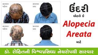 ઉંદરી એટલે કે (Alopecia Areata) માટે ડો. રોહિતની વિશ્વપ્રસિદ્વ નેચરોપથી સારવાર