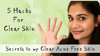 Get Rid Of Acne & Get Clear Skin Naturally | Just 5 Changes & See Your Skin Change | Nidhi Katiyar