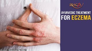 Watch Home Remedies and Ayurvedic Treatment for Eczema