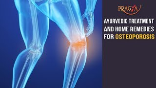 Watch Ayurvedic Treatment and Home Remedies For Osteoporosis