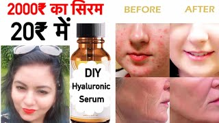 Homemade Hyaluronic Serum for Glowing Skin | DIY Anti Aging Serum | JSuper Kaur
