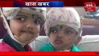 कुदरत ने किया इन मासूमों के साथ अजीब खिलवाड़....THE NEWS INDIA