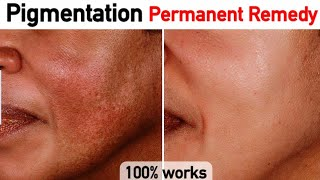 Pigmentation Home Remedy 100% Result | JSuper Kaur