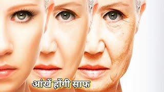 आंखें होंगी साफ, स्वस्थ और चमकीली, यह 3 उपाय - S M W