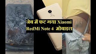 जेब में ही फट गया Xiaomi RedMi Note 4  मोबाइल | Xiaomi Redmi Note 4 Explodes in Owners Pocket