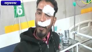 अंबाला में छोटा खुड्डा के नजदीक बस दुर्घटना    ANV NEWS  YAMMUNANAGAR - HARYANA
